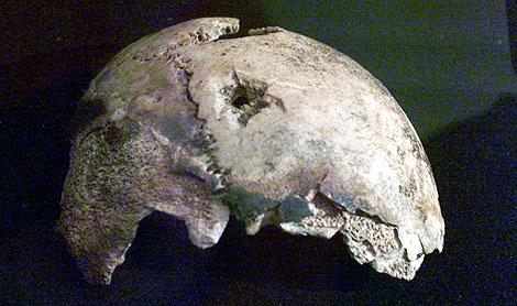 Imagen del hipotético cráneo de Adolf Hitler. | AP
