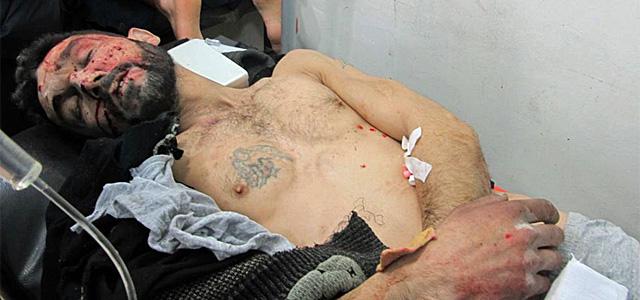 Un herido en un hospital improvisado en Bab Amro.| Reuters