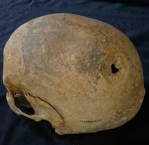 Cráneo de la mujer del siglo XIII. |B.L.M.