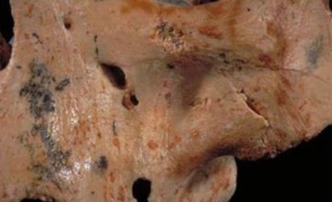 Cráneo de 'Homo Antecessor' con marcas de corte y mordeduras. | IPHES