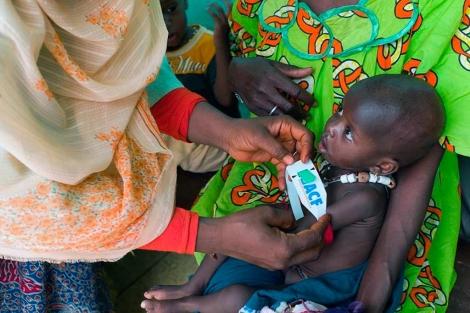 Acción contra el hambre comprueba el estado de un niño en Muritania.