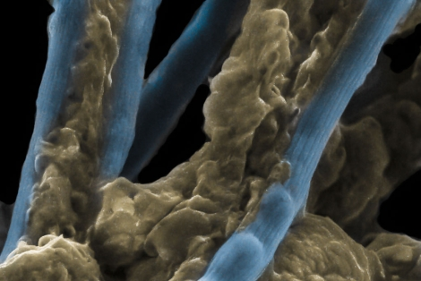 La bacteria eléctrica. | Nils Risgaard-Petersen