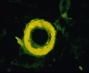 Un anillo amiloide en el cerebro de un paciente con Alzheimer. (Foto: James Powers, Rochester)