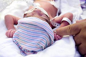 Un bebé prematuro en un hospital de Arizona. (Foto: AP)