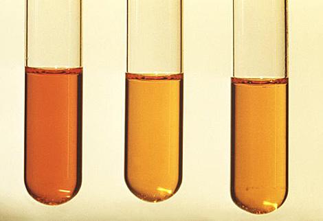 Tres tubos de análisis.| CDC | David Berd