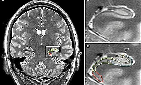 Resonancia magnética de la zona cerebral afectada por el estrés. | El Mundo