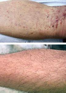Arriba, aspecto de la pierna donante de vello. Abajo, tres meses después. | Sanusi Umar