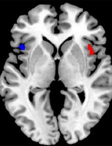 Diferencias en la circunvolución frontal inferior en un cerebro monolingüe (en rojo) y en un bilingüe (azul). | BRAINGLOT