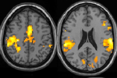 Áreas del cerebro de pacientes con fibromialgia activadas ante un estimulo doloroso. | PLoS One