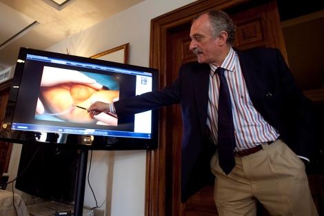 ... pionera de la uretra y el pene a un bebé | Noticias | elmundo.es