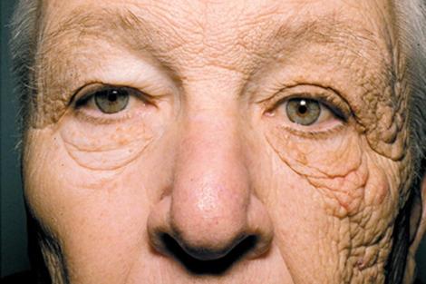 Envejecimiento de la piel por el sol.| Jennifer R.S. Gordon, M.D. y Joaquin C. Brieva, M.D. | NEJM