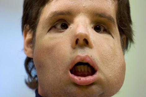 Receptor del primer trasplante completo de cara del mundo. | Reuters