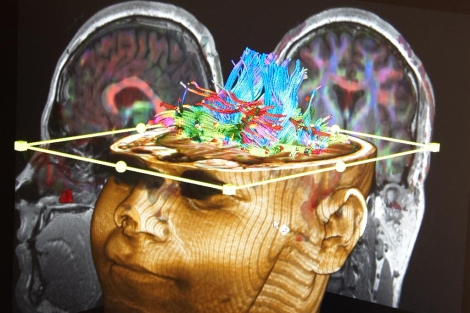 El ictus consiste en una alteración del riego cerebrovascular. | Jon Corostola