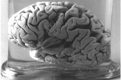 Imagen del famoso cerebro de Leborgne. | El Mundo