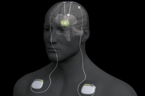 Neuroestimulación en Parkinson