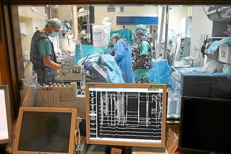 Varios cirujanos en un quirófano vistos a través del cristal del control