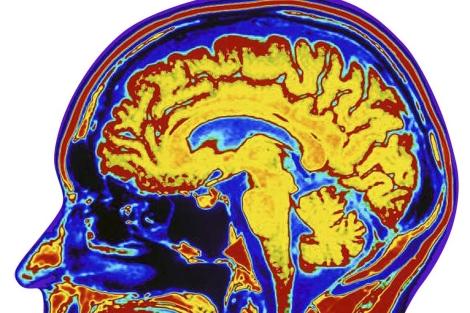 Las técnicas de imagen se utilizan para estudiar el cerebro y sus enfermedades. | El Mundo