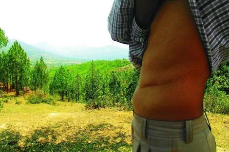 Un hombre nepalí, víctima de una red de tráfico de órganos. | David Jiménez