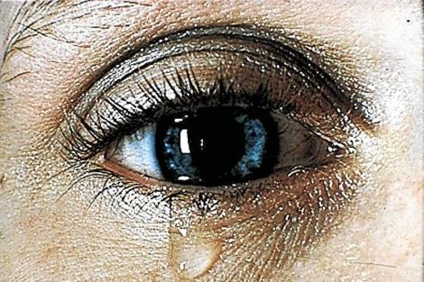 Lágrimas artificiales pueden aliviar la sensación de ojo seco. | El Mundo