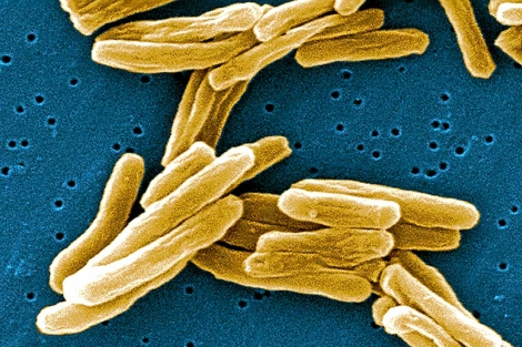 Detalle del bacilo de la tuberculosis bajo el microscopio. | EL MUNDO