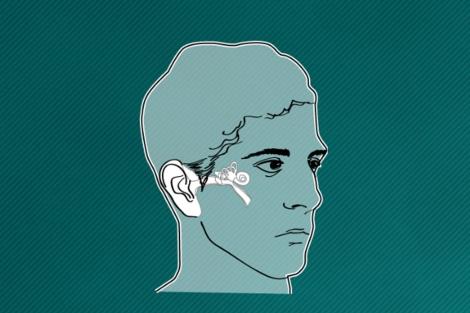 Vea el gráfico sobre la audición y cómo funciona el implante coclear. | Gracia Pablos