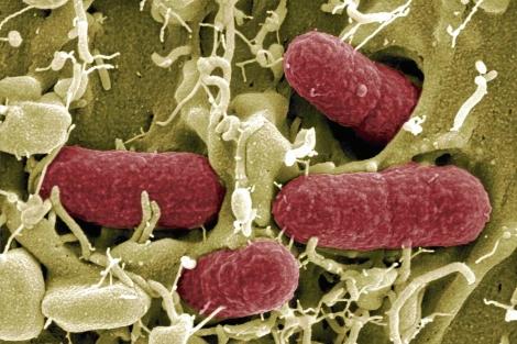 Una cepa de la bacteria 'Escherichia coli'. | Efe